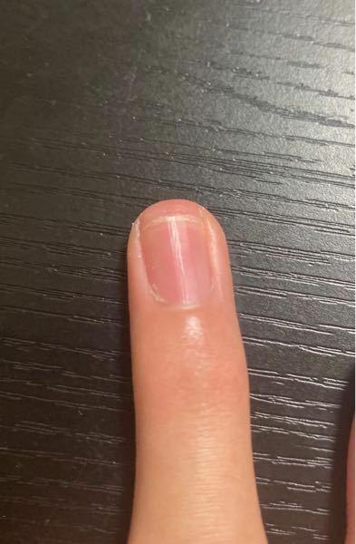 爪に切り方についての質問なんですが この爪って深爪ですよね? 親に勝手に切られたんですが、白い部分もある程度残さなあかんって言ったらこれでいいのってめっちゃ奥まで切られました。 白い爪の部分を残さなかったらだんだんピンクの部分が小さくなるって聞いたことがあります。 もしこれが深爪だったらどうしたら直せますか? もうひとつの爪も奥まで剥がれてます。これって治るんですか?