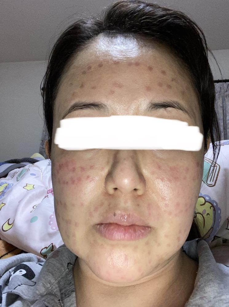 かかりつけの美容皮膚科で5/1にレーザートーニングを受けたのですが(この病院では2回目)施術中 尋常じゃない痛みでしたが、久しぶりだから違う機械になったのか?と思い我慢しながら受けました。 施術後顔を見たらやけど後のように真っ赤になっていて、もの凄い痛みだったので、医師に見てもらったところ、たまに赤くなりやすい人が居る、化粧品が残っていたりするとなる事をがあるとの事で軟膏を処方されました。 3日経過しても少し薄くなりましたが跡が酷いです。考えてみると、前回と違う音と光の具合でトーニングと言うより、レーザのショットでしみとりしている様な感じであきらかに違う施術でした。痛みも尋常じゃなかったです。 インスタでフォローさせて貰っている、美容クリニックの先生にDMを画像付きで送って見てもらいました、出力が強すぎるか、モードがトーニングでは無い、タトゥーとかをとる時に使うのと間違えたのでは?との見解でした。 GWが明けたら、施術を受けた皮膚科に掛け合いたいと思いますが、とりあえずこの跡を消して欲しいのです。そして 施術代も返金してほしいです。 話し下手で病院にうまく、丸め込まれそうです。 画像は施術当日の物です。赤い点が螺旋状に レーザーを当てた所に残っています。 今まで他院でレーザートーニングを30回近く受けてきましたが、ダウンタイムが発生した事は一度もありませんでした。ダウンタイムが無い施術と言う事で受けたのに、水疱瘡の様な発疹の顔になってしまい外出も出来ません。 あきらかに病院のミスなのに泣き寝入りしたくないです。 こうゆう事例に詳しい方、弁護士関係の方 お力をお貸しください、どうしたら良いでしょうか。助けてください! よろしくお願い致します。