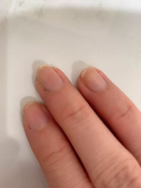 最近バイトを初めて、爪がボロボロになってしまいました。 今までは爪を褒めて貰えるくらい、頑丈だったのですが(笑) かけたり二枚爪?になったりめくれたり.... 治す方法はありませんか?