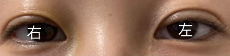 二重整形の左右差で悩んでいます。 術後4日目ですが写真の通り、左目の方が大きく、二重のラインも上にある感じがします。 ダウンタイム中の腫れで左右差が出るのは聞きますがこのような状態から左右対象になった方はいらっしゃいますか? 右は今、薄く黄色いあざがありますが左は術後から何もないです。 とても不安です。