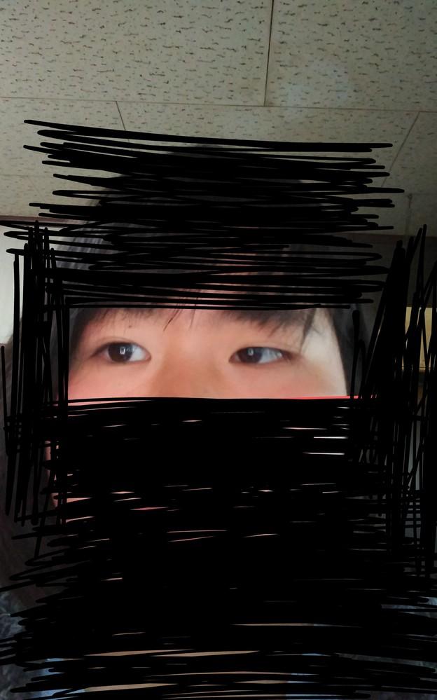 友達に、「○○(私)ちゃんて目と目が近い顔してるね」と言われたのですが、近いでしょうか?整形も考えています。回答よろしくお願い致します。