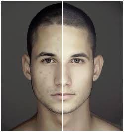 【メイク】1日だけ肌を白くする方法はありますか?? できるだけナチュラルに、肌を白く見せる方法ってあります?? 私は男で昔、野球をやっていたので、肌がやや浅黒いのが悩みです。 シミも出てきました。 とりあえず、「1日だけ」肌を白く見せたいです!! 男なので、メイク・美容に関する知識がありません(泣) 良いアイデアがありましたら、教えてください!! 動画及び写真撮影を行うので、できるだけ映りを良く見せたいです!!