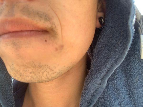 この位置の口ピアスって変ですか? もっと唇よりにあげれば良かったのですが、開けてから20年近くなるのでもぅ塞がりません。 少し上に開け直すか悩んでます。