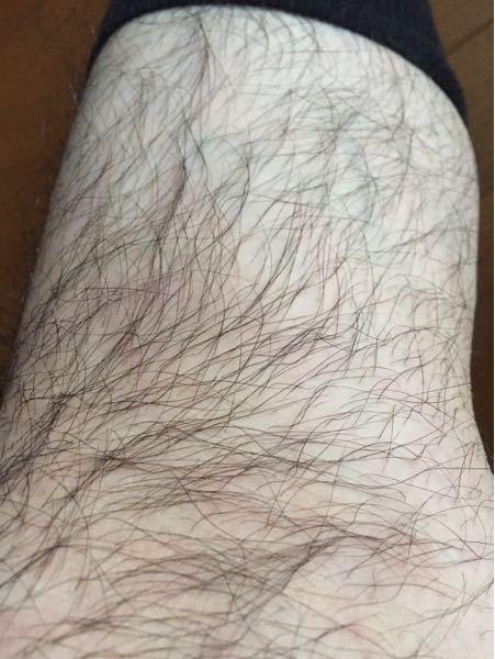 すね毛濃いですか?