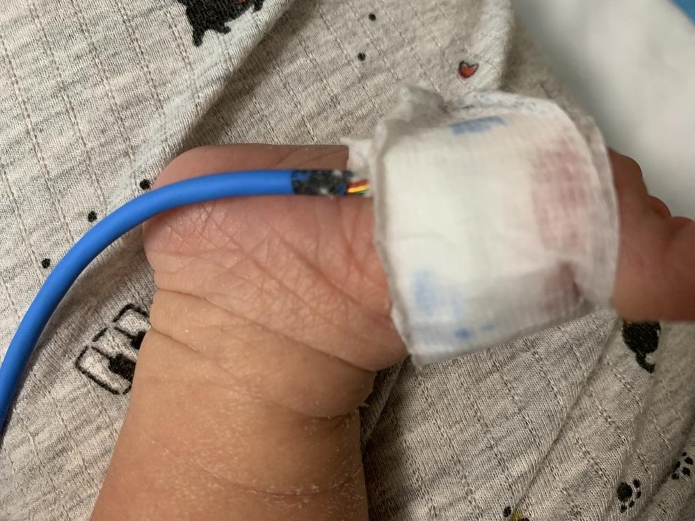 子どもが今入院しているのですが 足の裏に酸素を測るモニター?みたいなものがついているのですが、よく見ると根元に赤や黄色の銅線?みたいなものが見えます。これは危ないですか?看護師に交換してもらったほうがいいのでしょうか?
