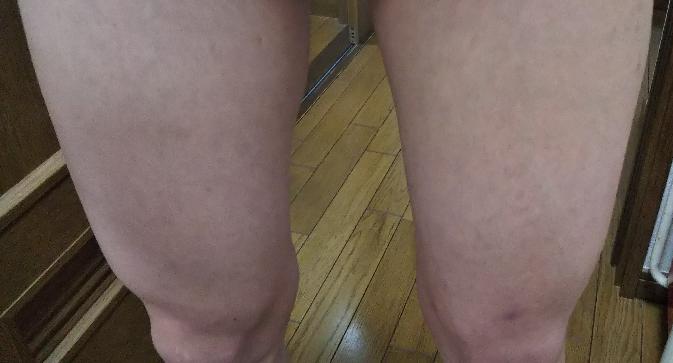 男の人の脚ですが細いように見えますか?筋肉があるように見えますか?太っている人の脚に見えますか?普通ですか?