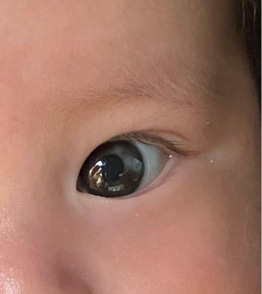 生後2ヶ月の息子の目について。 写真から分かるように目の半分?が グレーになっています。 これは大丈夫なのでしょうか? 何かわかる方いましたら教えてください!