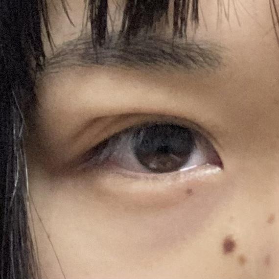 先日2点留めの埋没手術を行いました。 今日で6日目です。 左目は元々奥二重で末広に作成してもらいました。右目は一重で左目の幅に合わせて作成すると言われたのですが元々の線?があったらしく目尻の部分...