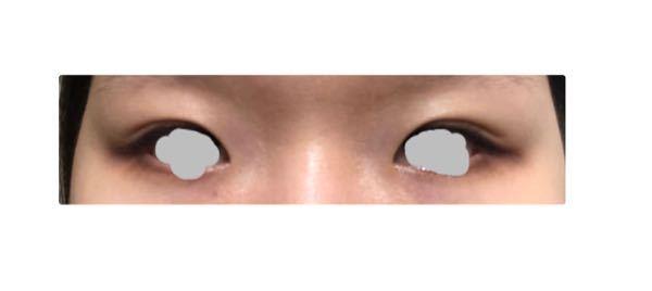 この目は奥二重ですか?末広二重ですか? 違いが分からないので教えてください。 自分の中では目頭からの二重なので奥二重だと思いました。