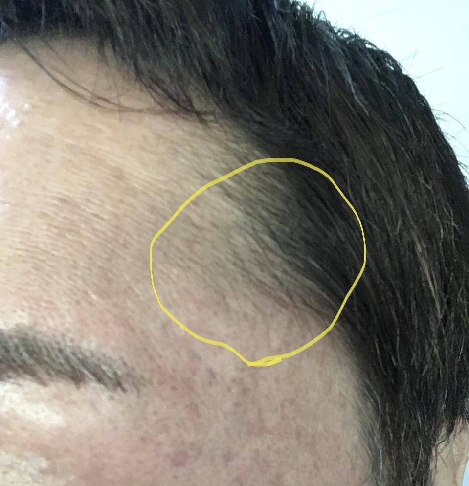 この画像でいうコメカミ斜め上辺りの黄色で囲んだ毛を何という? カットに行った時にこの毛を 言葉として言い表せれば便利だから