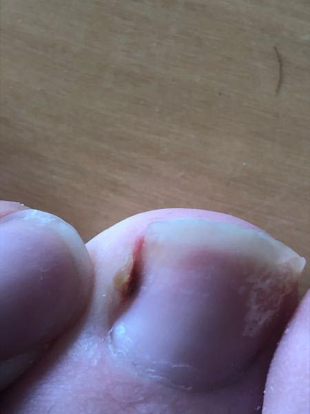 この黒い染み?は皮膚の方についてるみたいなんですが放っておいても平気ですか? 気づいてから3日くらい経ちますが変化は今の所ありません。引っ張ると少し痛いくらいで触っても平気です。臭いもあまりしません。