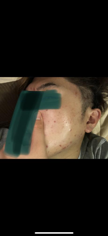 現在下の写真の様な肌状況なのですが、どの様なスキンケアもしくは治療をすればきれいになりますか? 普段はきちんとあわ立てて洗顔、美顔水→パック→乳液といったスキンケアを行なっています。