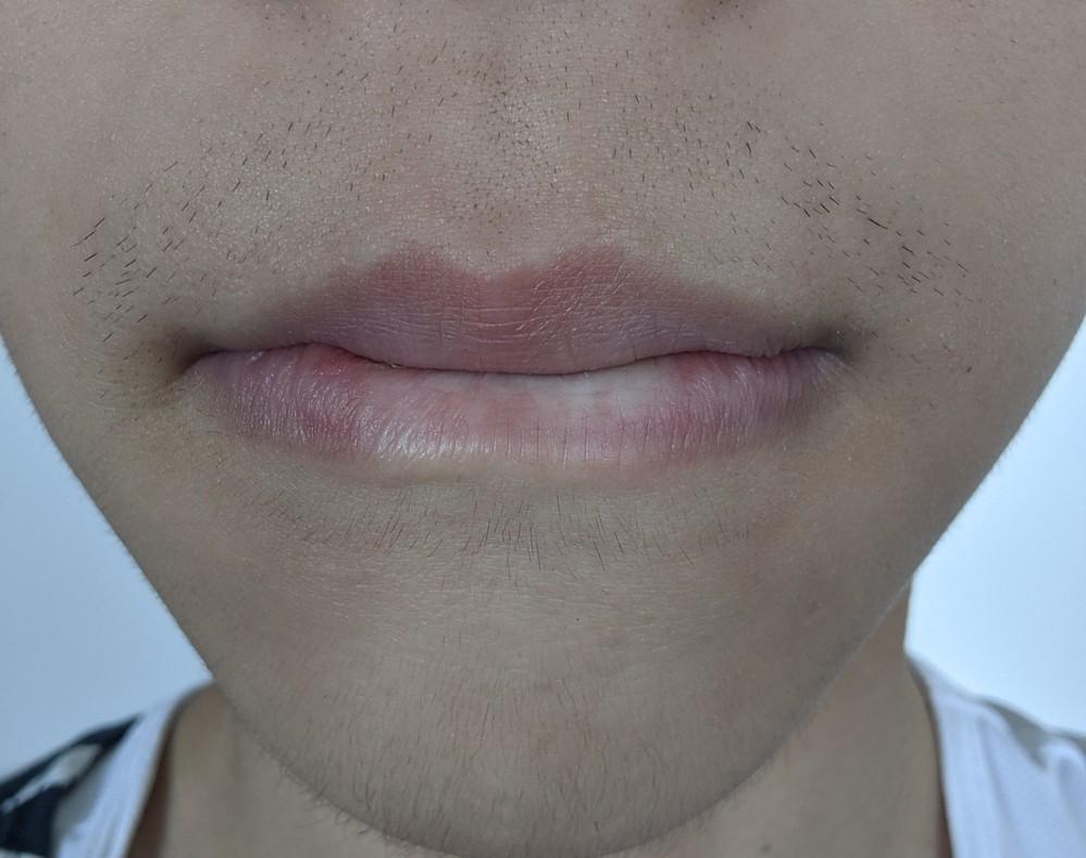 中3男子です。最近唇の上に硬めの髭が生えてきます。顎には産毛より少し濃いぐらいの毛が生えています。 このひげは中3にしては濃い方でしょうか?周りの人たちはまだ産毛しか生えていない人が多いです。また、この髭だともう身長は伸びなさそうですか?回答よろしくお願いします。