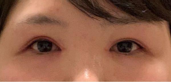 どっちの目の方がかわいいですか?
