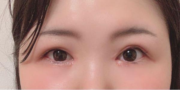 どちらの目が普通だと思いますか? どちらが好みですか?
