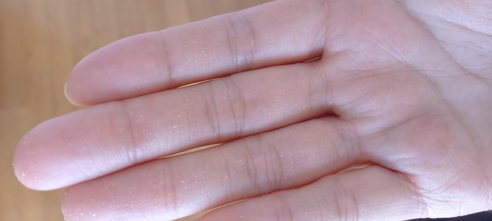 相談なのですがヘアカラーを素手でやってしまい、手がボロボロになってしまいました。どうすれば良くなるでしょうか?? 長い期間が必要ですよね?お願い致します。