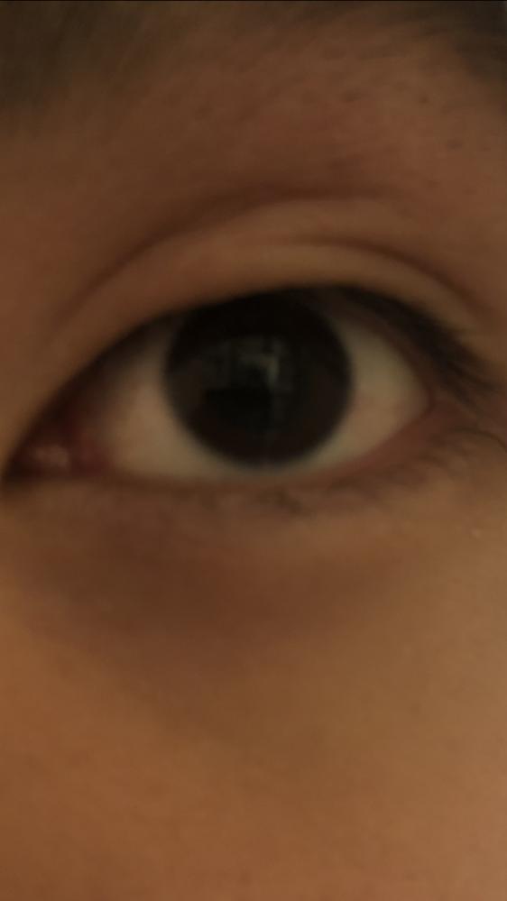 瞼がおかしくなりました。 最近痒くてずっとかいていたらこうなりました。 目に瞼が重なっている感じがして違和感があります。 もう治らないのでしょうか? 右目は綺麗な二重のままです