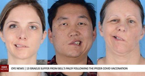 世界で新型コロナウイルスワクチン接種した人に顔面麻痺などが起きてますが接種したい?