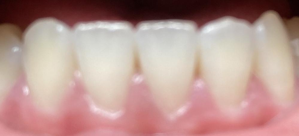 茶色に見えるのですが虫歯の可能性ありすか?