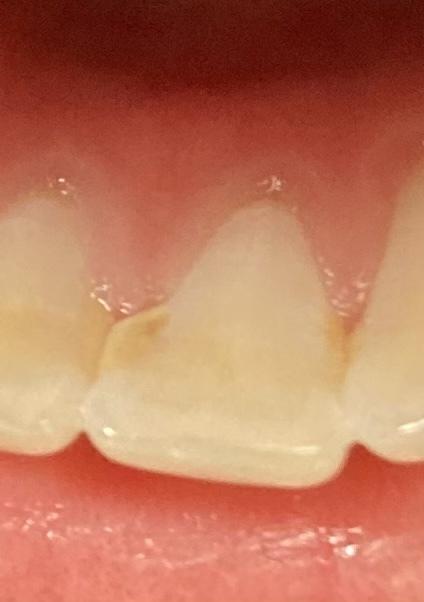 前歯が昨日突然痛くなって見てみたらこの様なものを見つけました、虫歯ですかね