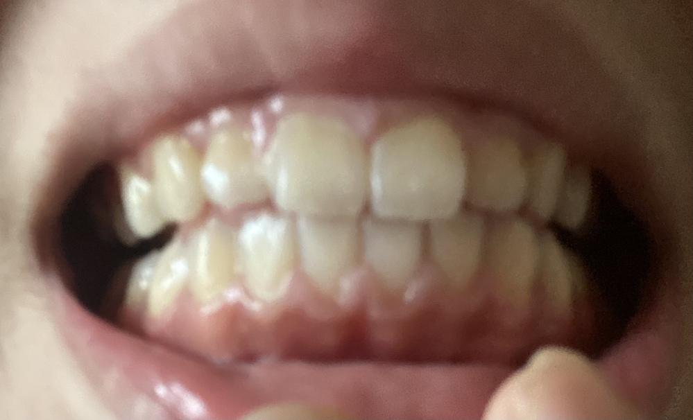 これって歯周病ですか? 中学生です。 今日、学校から帰ったら歯茎が下がっていて、、 病院には行った方がいいですよね、、´;ω;`)