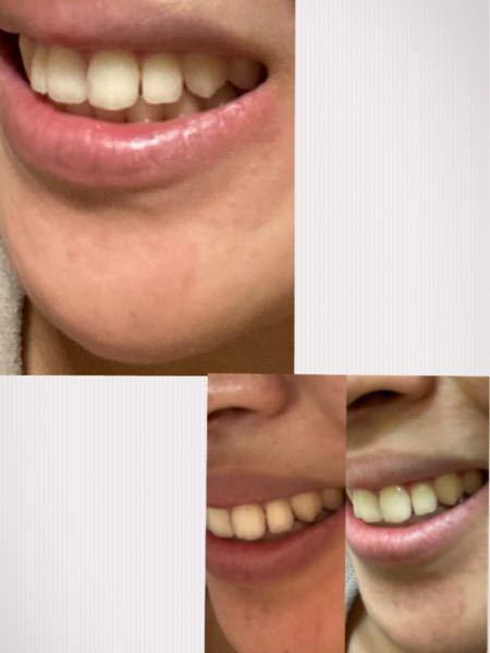 前歯の隙間気になりますか?気になってるのは前歯2本の歯から横のの歯の側切歯までの間の隙間です。 自分では毎日見すぎてよく分からなくなってしまって。。 よろしくお願いします。