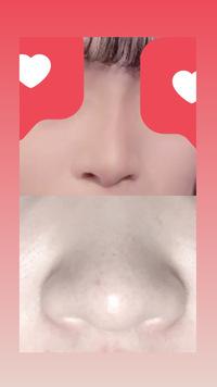 美容整形についての質問です  簡単に大体で答えて下さればいいのですが、 整形で画像下の鼻から画像上の鼻にすることは可能ですか? 又、予算、いくらほど用意すればいいでしょう?