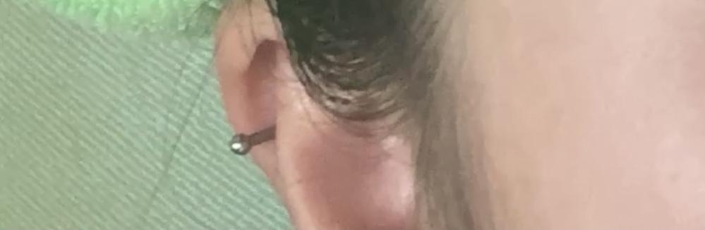 軟骨ピアスについて質問です。 昨日14ゲージのピアッサーでヘリックスを開けました。痛みは開けた当日だけで1日経った今では衝撃を与えない限りはほとんど痛みません。 しかし、開けた時に写真のようにキャッチが耳の後ろに接触していて、後ろに押そうとするとすごく激痛が走るのと全くと言っていいほど動きません。 これは無理やりにでも押し込んだ方がいいですか?それとも自然に動くようになりますか? またヘリックスの正しいケア方法もあわせて教えて頂きたいです。