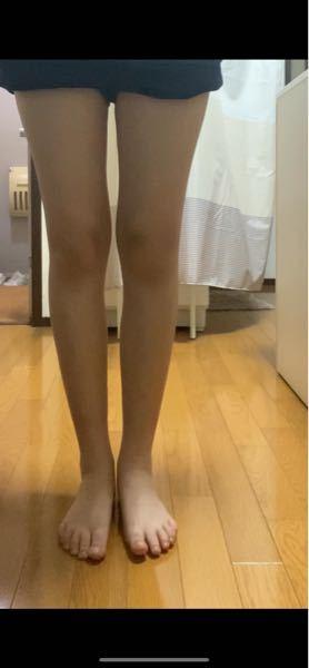 私ってO脚なんですか?
