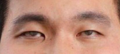 この目、怖くないですか?病気なんでしょうか?