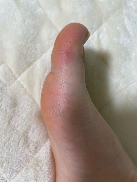 足の親指のできもの?について 貼っている画像だと少し分かりにくいかもですが、、、昨日から親指の赤くなっている部分が痒く、親指を見てみると少し赤くなっていました。そのまましばらく経つとまた痒くなり...