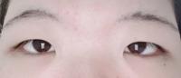 メイクや整形についての相談です。 重い一重、すさまじい蒙古襞、覇気がなさそうに見える重い目……無理やり目を開けようと意識しなければ常にこの状態になってしまいます。瞼が重いばかりにまつ毛も頻繁に目に入り、のりタイプ、テープタイプの二重グッズも全く効きません。マッサージや目を大きく開くなどの運動も始めて10年以上経っています。 就活を控え、メイクをしようと試みたことは何度もあるのですが、目がこ...