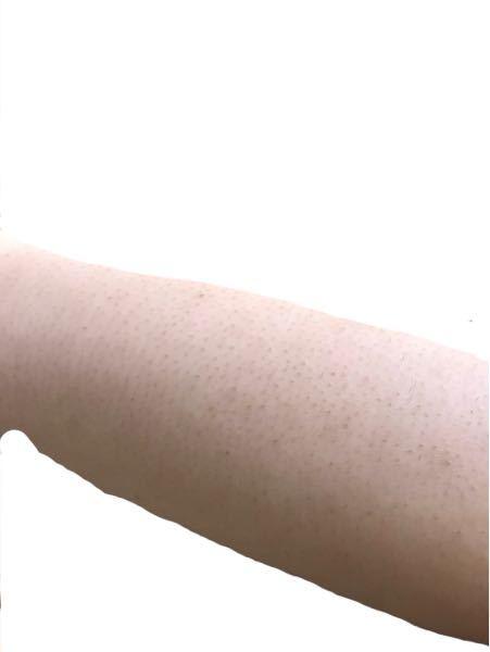 22歳女です。 腕の医療脱毛9回照射後2日経った状態です。 ①これらはやはり埋没毛と色素沈着ですかね? もう少し回数重ねたらましになるでしょうか。 ②こんな腕だったら恋愛対象にもならないでしょうか、、、 元が剛毛な上に間違った自己処理のせいで埋没毛や 色素沈着があったため回数にしたら効果がないように思えますが、 脱毛前に比べれば本当に良くなりました。 でも毛穴のない綺麗な肌の人が多すぎて、 それを目指そうとすると色素沈着が気になって半袖にもなれないです、、、