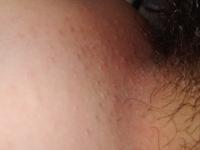 画像注意⚠️⚠️⚠️ 陰部の毛の処理をするとポツポツしてすごく荒れます。痒いです。 下着の当たるところであったり、汗をかきやすくなる時期であったりと様々な原因が重なって余計れていると思うのですが、陰部の毛の処理をする時皆さんどうしていますか?