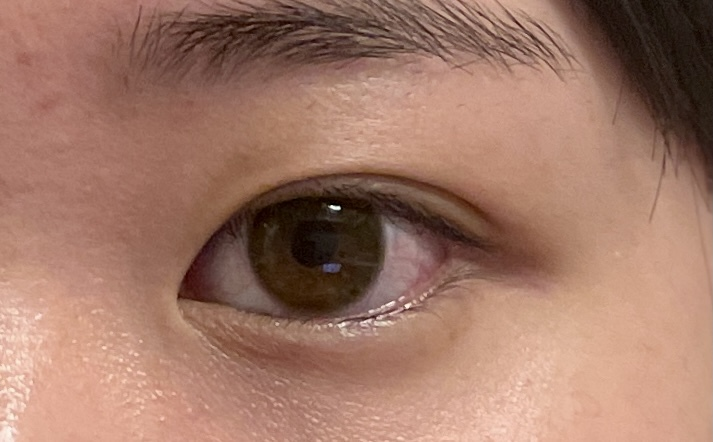 この目は、奥二重ですか?末広二重ですか? (充血と肌荒れしていてお見苦しくてすいません~_~;)