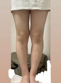 ダイエット方法と脚やせ、、、   158cm 58kg 太もも59cm ふくらはぎ36cm デブと言うよりかはぽっちゃり寄りだと思います これでも一応3kg痩せたのですがまだまだ痩せたいです。  食事制限は多少できます。ですが筋トレなど有酸素運動は3日持って凄いほうです こんなわたしでも出来るダイエット方法教えてください。  それと脚やせも教えて欲しいです、毎日マッサージし...