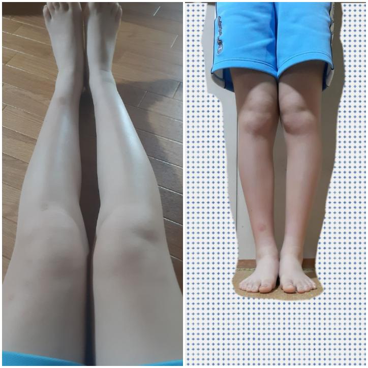 膝下O脚&足の太さで悩んでいます。 足の太さは、運動をすれば改善できると思いますが、足の歪みはどうすれば治るのか分かりません… YouTubeで歪みの改善動画などを調べてみても、元から少ししか歪んでいないような方ばかりで、自分のような膝の骨が大きくて左右非対称な感じの人はいないので参考にしずらいです… 膝上に肉が乗ってしまっているのも、股関節や、骨の歪みも原因のひとつになっているんだろうなと思っています。 痩せたくて運動を続けても、全く変化がありません… 身長も伸ばしたいし、ピタッとしたパンツや膝が出る写真のような丈のパンツを外でも堂々と履けるようになりたいです。 どうすれば改善できるでしょうか?