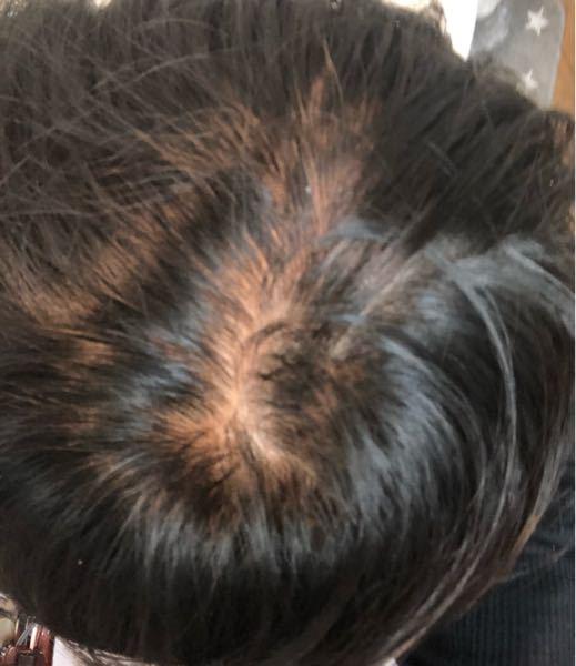 中3男子です。 生まれつき髪が細いんですけどこれはやばいですか? 最近気になりだしたとかいう感じではないです。 もともと髪のボリュームはあまりある方では無いです