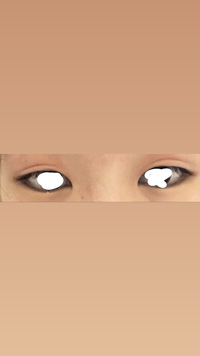 この目は蒙古襞ありますか? あと二重整形をしようと思うんですが平行二重にするには目尻切開した方がいいですか? 汚いものなので見る方は注意してください。