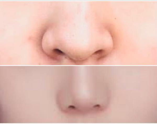 美容整形に詳しい方に質問です 上の画像のような鼻を下の画像のようにするには どのような施術を行うべきですか?