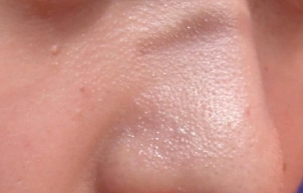 「肌質、閲覧注意」鼻のこういうブツブツって どうしたらよくなりますか? 化粧でも隠しにくいのですか?