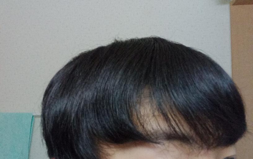 中学生男子です。 このように目と耳の中間くらいの毛が曲がってしまいます。どうすれば治りますか?