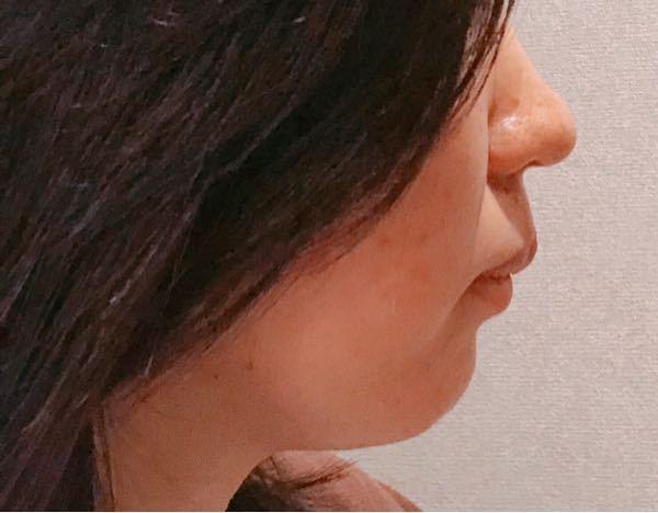 自分の横顔に自信が持てません。これって口ボコでアデノイド気味ですよね…?なんというか顎の肉が垂れているのも気になります。何か改善方法とかがあれば教えていただきたいです。よろしくお願いいたします(´;ω;` )