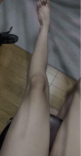 中二です。最近、足が太くなって困っています。 小学生の頃はよく「質問者ちゃんって足細い!」とか言われてガリガリ系キャラで通っていましたが、中学生になってから著しく足が太くなっていきました。ブヨブヨしているというか、タルンとしています。縦から見ると普通ですが、横から見ると大根なので、座ると写真のようにぶっっとくなります。なのでいつも学校で座る時は足を浮かせています。 足を細くする方法はありますか? 自分は学校の給食以外はお菓子を食べています。食べない日もありますが、ほとんどポテチとかを食べています。親が忙しいのでご飯は休日にしかあまり食べられません 体重は小学生の頃から何ら変わりないです。なのに見た目だけ太っていきます。 ウエスト?というか、お腹の細さは変わっていません。 自分は骨盤が出っ張っているのでそのせいでしょうか?食べすぎでしょうか?助けてください。 あとなんで女って膝が黒ずんでるんですか? 対処法や白くする方法はありますか?