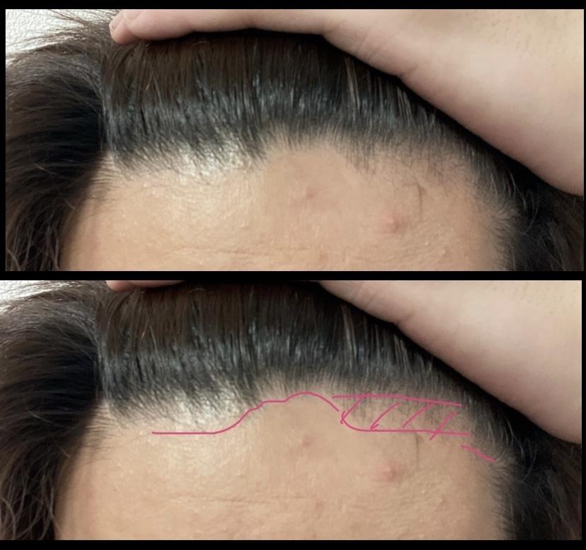 20歳男性です。生え際の一部が写真のように凹むように後退?しており、その横の方の部分が反対側と比べて髪が細くなっている(薄くなっている? )ような状態です。またこの髪が細い辺りは全体的に痒いです。 こ