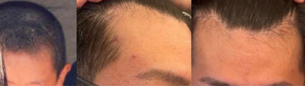 小さい頃から生え際に若干の剃りこみがありましたが3、4年前ふと鏡で自分の生え際を見た際から現在までずっと薄くなっているのではないかと気になってしまっています。 薄毛治療のクリニック見てもらおうと...
