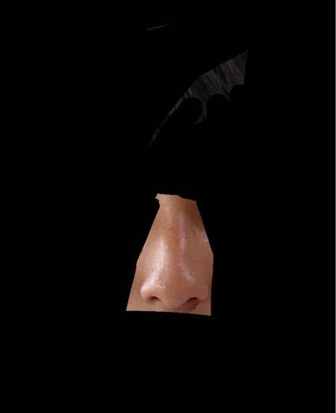 写真の通り鼻が片方上に斜めってしまってるんですけど 治し方とかありませんか?教えてください ♀️