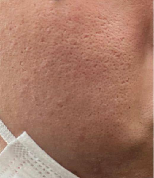 21歳の男です。昔は酷いニキビに悩まされ、今はニキビ跡と毛穴の開きに悩んでいます。私はそれらの治療の為にかれこれ5ヶ月間、セルフダーマペン7回程度、モザイクレーザー1回、ICON1540レーザー...