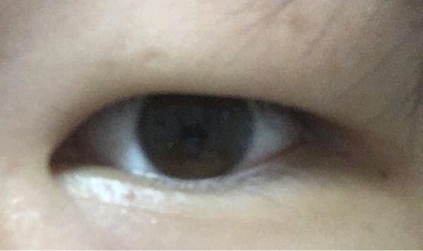 目 一重というかほぼ一重の奥2重みたいな目なんですけど、二重にする方法ありますか? もしかして二重にするとキモイすか 返信きたら二重のライン作った写真送ります