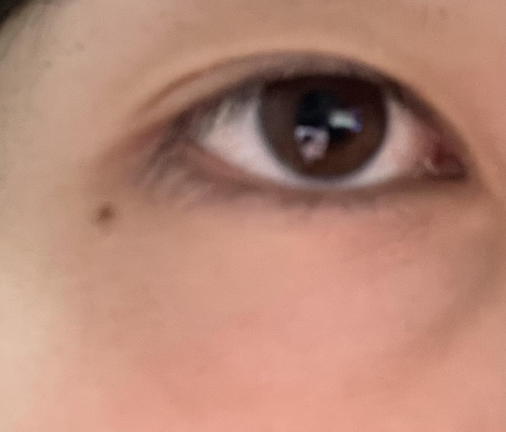 自分の目が奥二重なのか、末広なのかを知りたいです。 また、自分は平行二重にしたいのですが この目だと、マッサージ等を続けることで平行二重にすることはできるのでしょうか? 瞼を持ち上げれば平行...